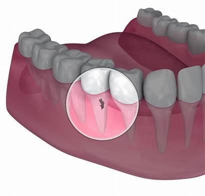 Crown Lengthening Dental Procedure Filling Need Told