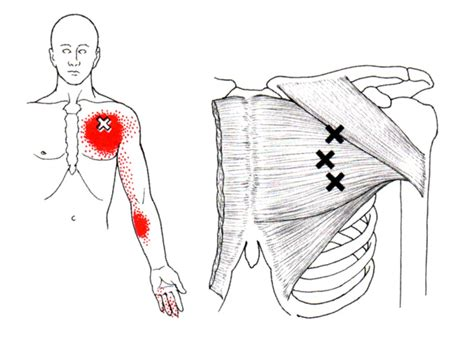 Pectoralis Major The Trigger Point Referred Pain Guide