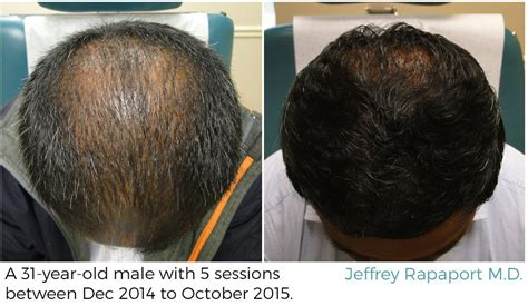 Hair Implants Yonkers Ny 10702 Prp Treatment Westchester