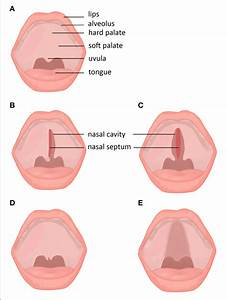 Subtypes And Subclinical Forms Of Cleft Palate   A  Normal