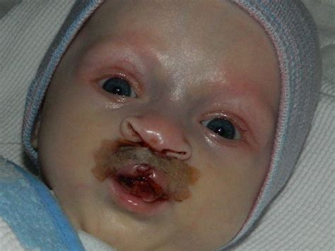 Lord Make Me A Saint First Cleft Lip Surgery