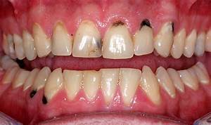 DTASA » Billions suffer from major tooth decay