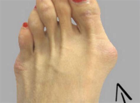 pied de le oignon de pied les traitements naturels