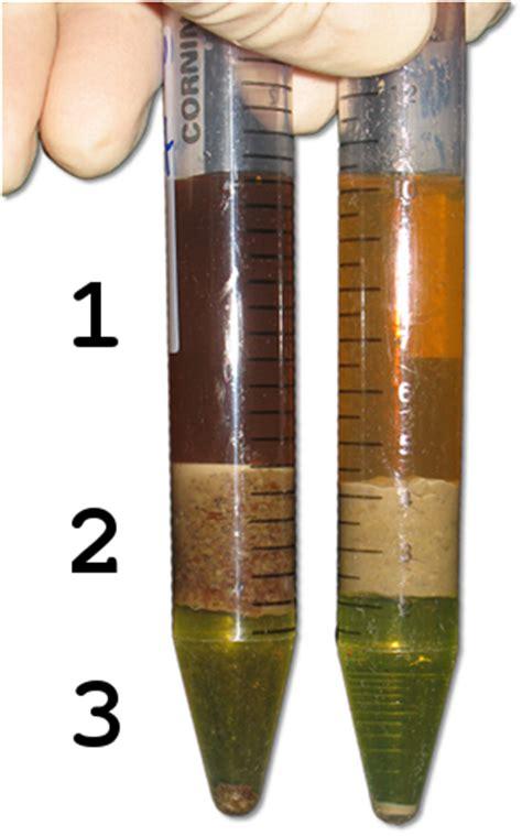 lipid extraction  mouse feces bio protocol