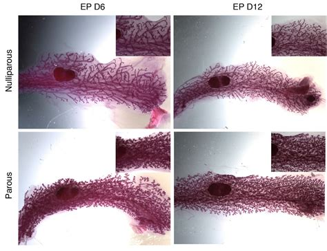Scientists Show The Mammary Gland Remembers Prior