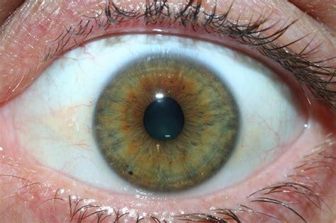 iridology eys images sample iriscope iridology camera iriscope camera iridology chart