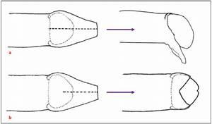 Diagrams Of The Most Common Penile Cut  A  Longitudinal