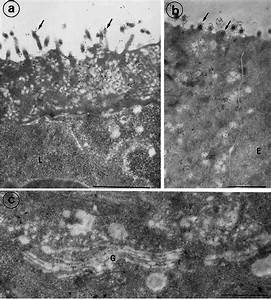 Electron Micrographs Of M Cells From Rabbit Appendix Labeled With Mab