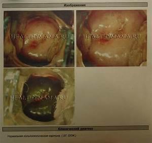 Геморрой и вздутие кишечника