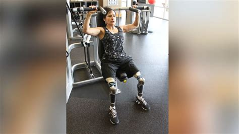 double amputee shares  story  leaving  wheelchair