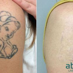 absolute laser tattoo removal    reviews