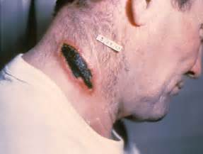 Description Cutaneous anthrax lesion on the neck. PHIL 1934 lores.jpg  Cutaneous anthrax Anthrax