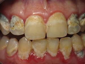 Kansas City Gingivitis and Periodontal Gum Disease Treatment