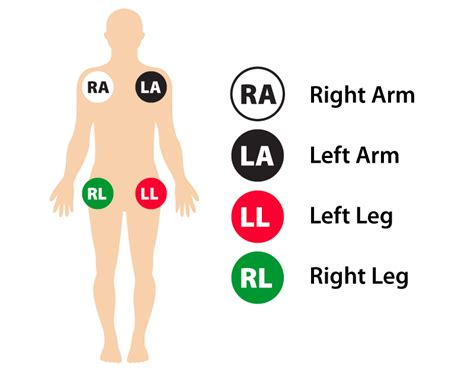 12 Lead Ecg Placement Guide With Illustrations
