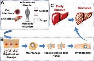 Scheme 1 Pathogenesis Of Hepatic Fibrosis   A  Etiology Of