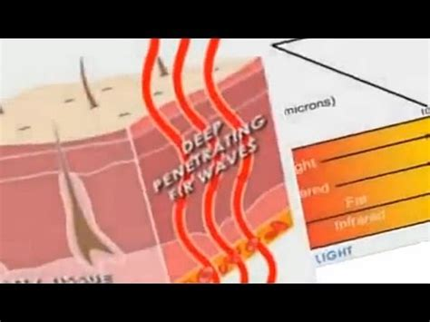 infrared heat l benefits dangerous side effects of radiation overdose doovi
