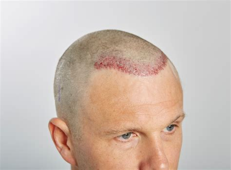 How To Deal With A Receding Hairline The Right Way