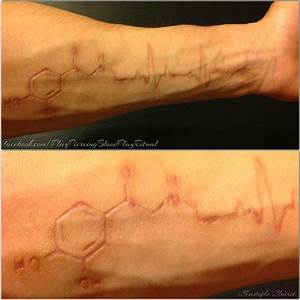 My arm scars (adrenaline/infarct cardio) by TheChristOff ...