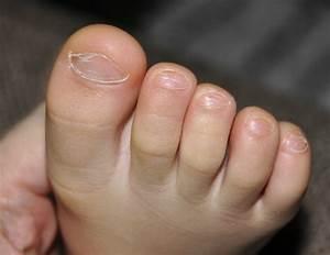 Грибок на ногах ментальные причины