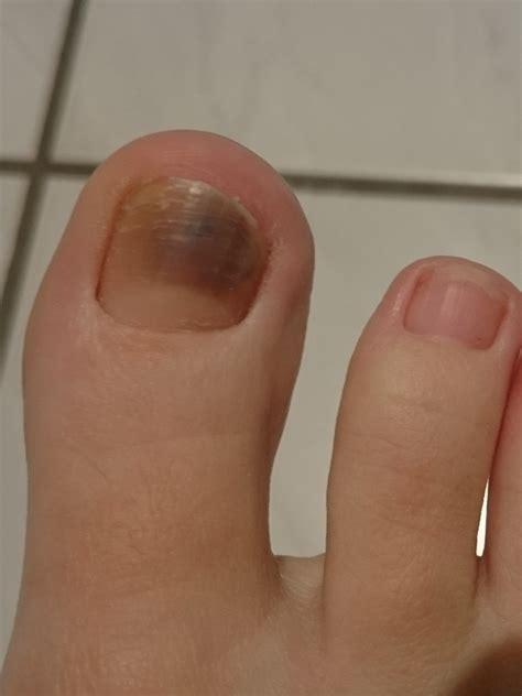 blauer fleck unterm zehennagel bluterguss oder krebs