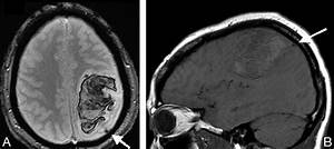 MR Imaging Features of Isolated Cortical Vein Thrombosis ...