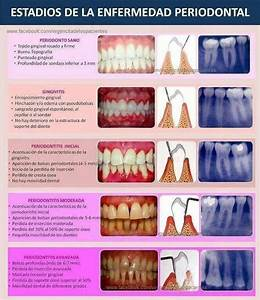 Stages of Periodontal Disease | RDH | Pinterest