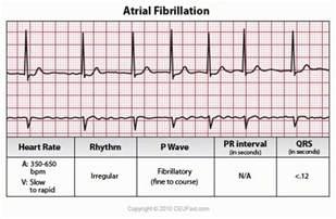 Atrial Fibrillation ECG Interpretation