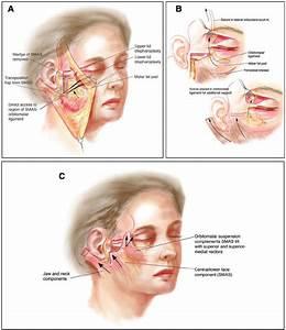 A  Orbitomalar Suspension  Oms  Procedure   B  The Medial