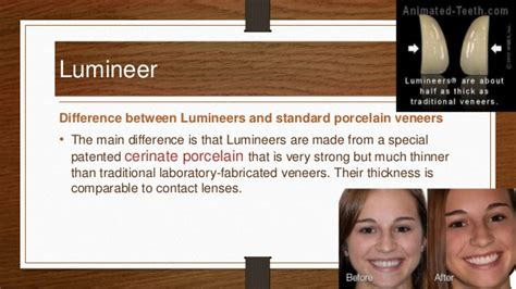 what is the primary difference between porcelain and ceramic tile dental veneer