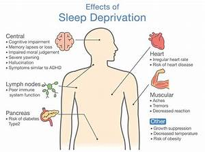 Sleep Apnea  U2013 The Definitive Guide 2018
