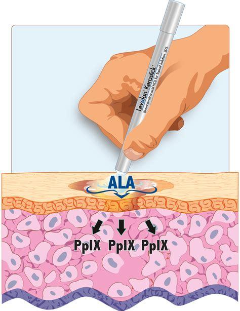 blue light photodynamic therapy dusa pharmaceuticals inc levulan kerastick and blu u