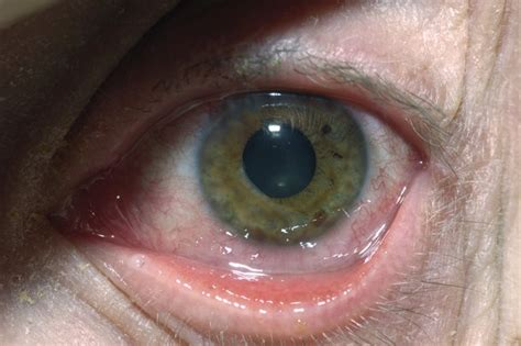 Herpes In The Eye Images Herpes Simplex Eye Infections Nhs Uk