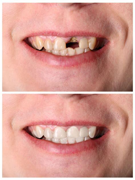 dentist       broken tooth
