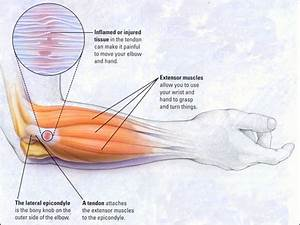 Stretches For Tendonitis Of The Elbow