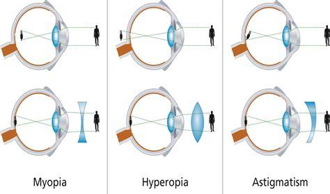 Many lasik doctors only perform one type of lasik eye. Astigmatism And Lasik - Astigmatism Glaucoma Swollen Eyes Disease