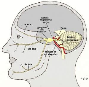 Pees verkalking ( schouder ) - Shockwave