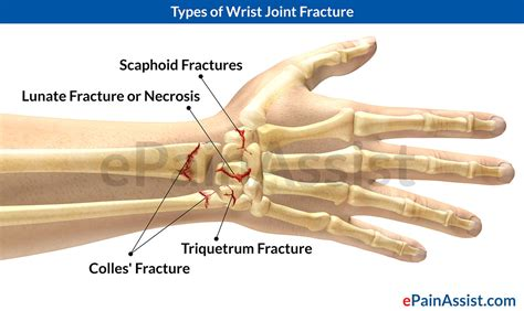 Wrist Joint Fracture types causes symptoms treatment