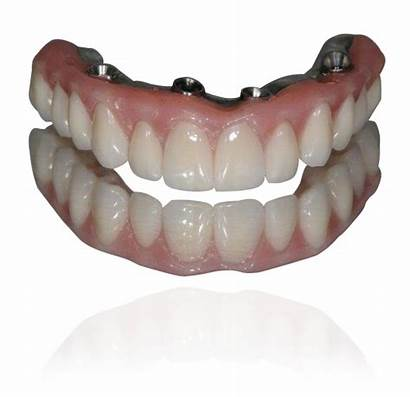 Dental Implants Diego San Treatment Dentist Seattle
