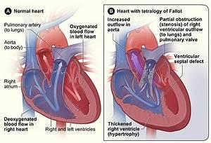 Department of Surgery - Tetralogy of Fallot