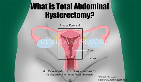 Total Abdominal Hysterectomy|Types|Indications|Procedures ...