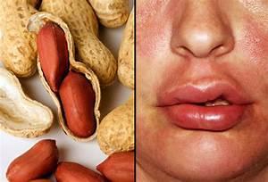 slideshow allergy triggers