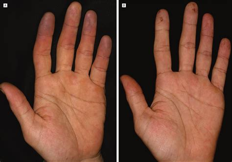 Hypereosinophilic Syndrome With Peripheral Circulatory