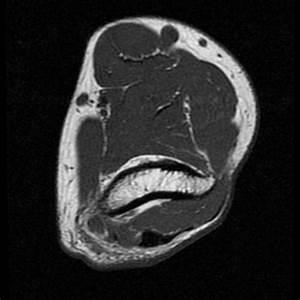 Ulnar Nerve Entrapment Syndrome In Cubitus Valgus