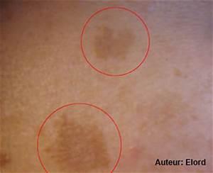 Douleur Milieu Dos Cancer : melasma sympt mes traitement d finition ~ Medecine-chirurgie-esthetiques.com Avis de Voitures