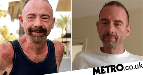 First Person Ever To Be Cured Of Hiv Dies Of Cancer 25