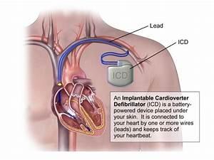 Automated External Defibrillators   Iridia Medical