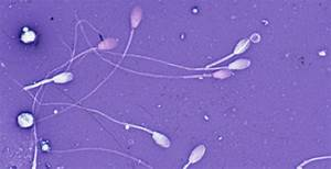 Salvaging Epididymal Spermatozoa