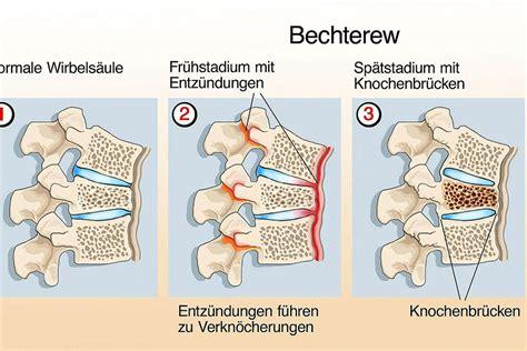 Checkup Morbus Bechterew Therapie  Schweizer Illustrierte