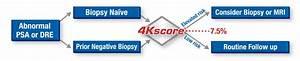 4kscore Cancer Testing Bioreference Laboratories