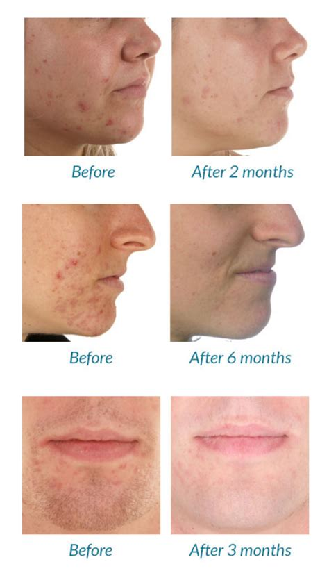 led light therapy before and after best blue light therapy devices for acne
